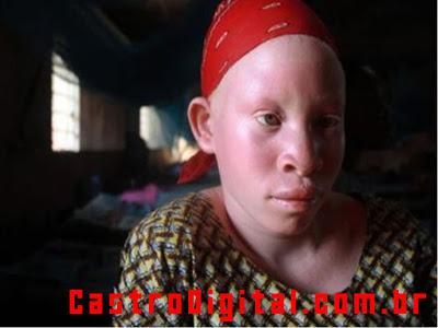 IMAGEM - Albinismo