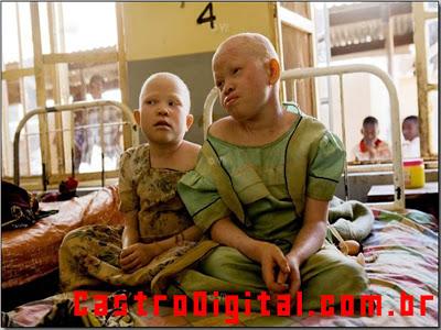IMAGEM - Bibiana e sua irmã Tendyebua