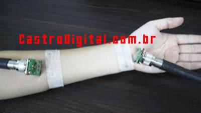 Internet banda larga via braço humano