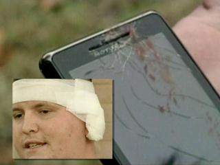 Vídeo de celular que explodiu no ouvido de americano